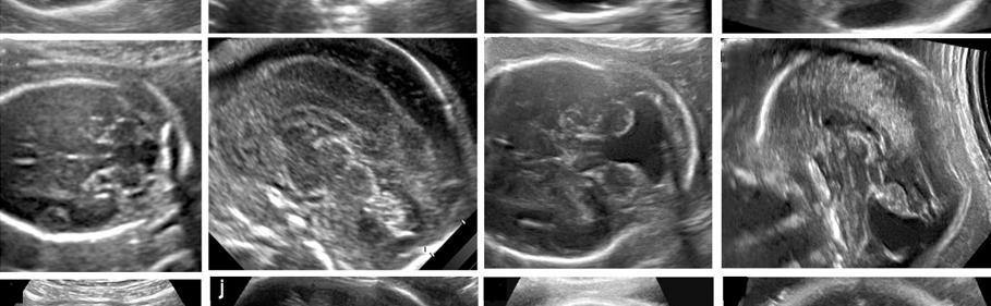 fetal brain fetal neurosonography clinic delhi india