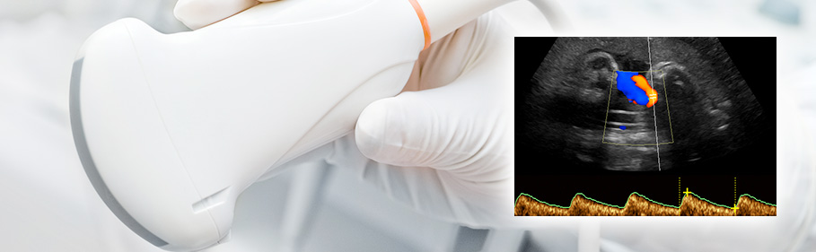 fetal-well-being-scan-fetal-medicine-delhi